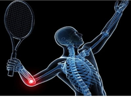 The Best Brace for Tennis Elbow Pain and Muscle Support